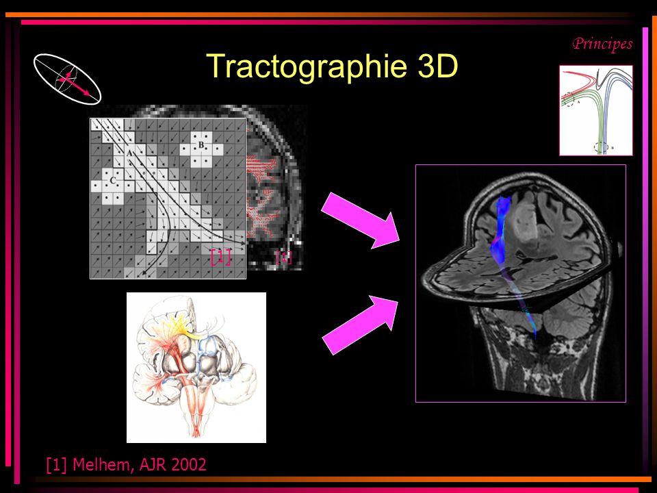 Tractographie 3D Principes. [1] [1]